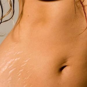 Smagliature e cicatrici cheloidi